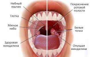 13 лучших средств от боли в горле — Рейтинг 2020