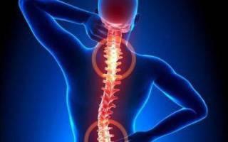 13 лучших лекарств от боли в спине — Рейтинг 2020