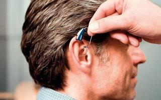 8 лучших препаратов от шума в ушах — Рейтинг 2020